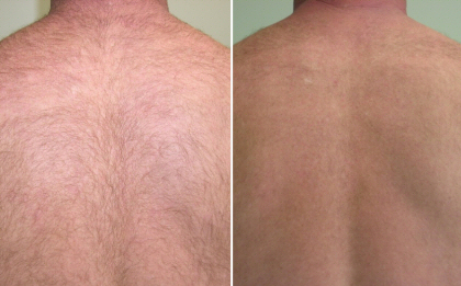 laser hair removal before after 3